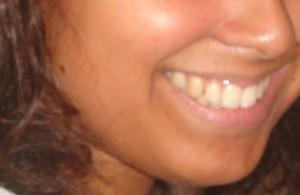 Comment utiliser le Bicarbonate de soude pour Blanchir les Dents